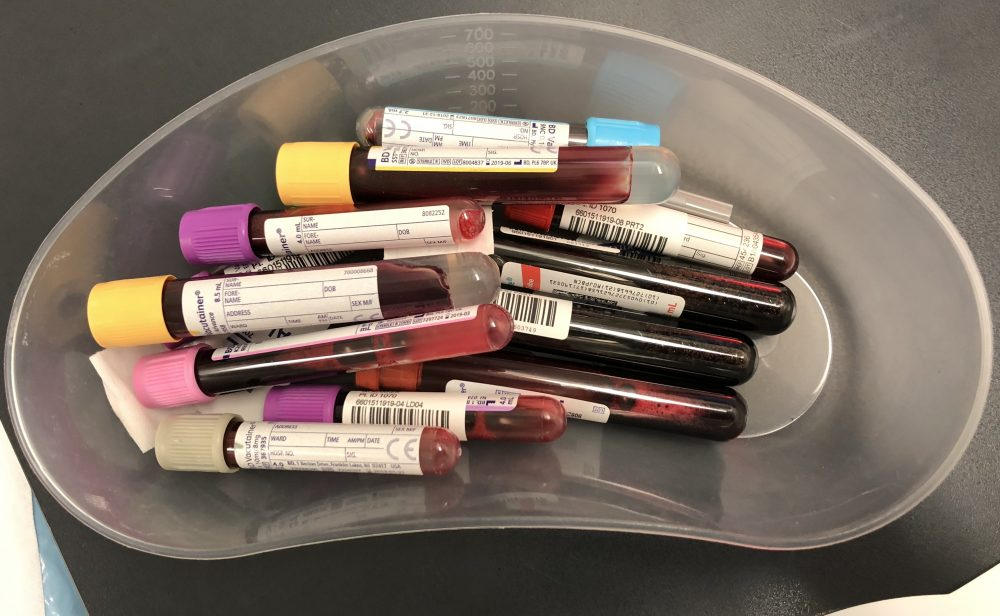 Louise Decelis's Blood used for Immunotherapy Trial